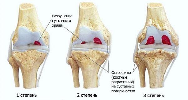 Используют Нимид при патологиях суставов