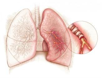 Не назначают противовоспалительное средство при бронхиальной астме