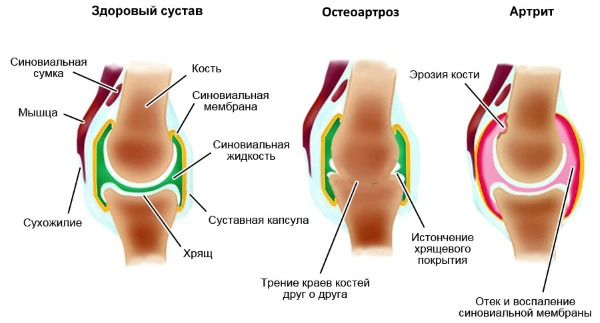 Используют Ревмоксикам при заболеваниях суставов и позвоночника