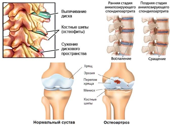 Заболевания суставов с воспалением служат показанием для применения Мелофлекса