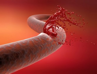 Если процесс свертываемости крови нарушен, то Нимид не назначают