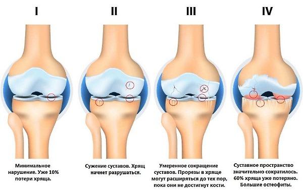 Назначают Ларфикс от острой боли при остеоартрите и артрите