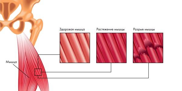 Новалгин используют для купирования боли при растяжении мышц