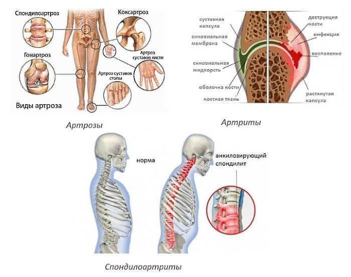 Воспалительные процессы в суставах являются прямым показанием к применению препарата Локсидол