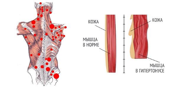 Толизор назначают, если возникают мышечные спазм по причине заболеваний опорно-двигательного аппарата