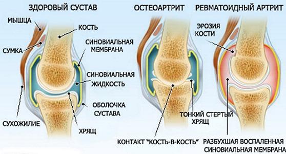 Среди показаний к приему Месипола ревматоидный артрит и остеоартроз