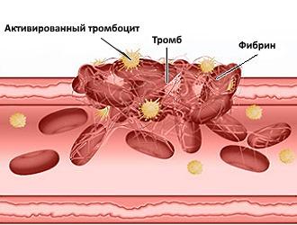 При приеме Ксефокама Рапид необходим контроль со стороны свертываемости крови