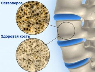 С большой осторожностью назначают лекарственное средство при остеопорозе