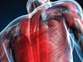 Миофасциальный синдром мышц спины