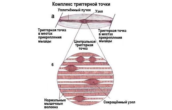 При миофасциальном синдроме в мышечной ткани образуются триггерные точки