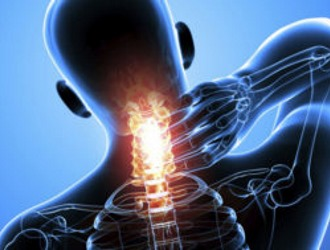 Шейный остеохондроз клинические рекомендации
