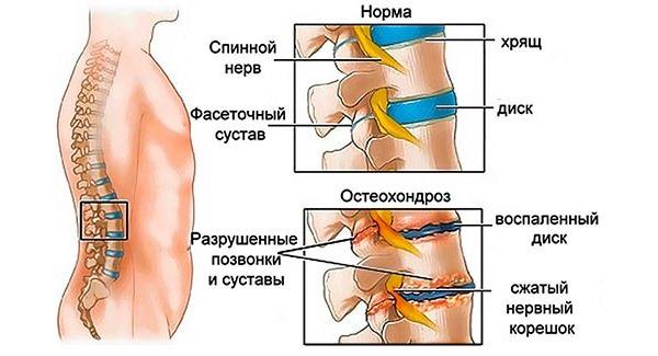 Наиболее часто к корешковому синдрому приводит остеохондроз