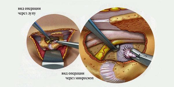 При сильных жгучих болях в спине могут назначить оперативное вмешательство, если причинами является грыжа