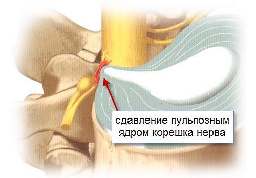 Запрещено делать массаж при острой корешковой боли