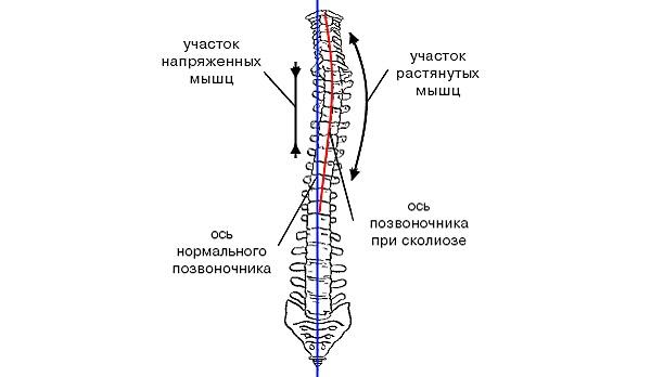 Обратите внимание на то, в каком состоянии находятся мышцы спины при сколиозе