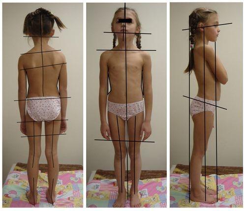Сколиоз можно диагностировать по ассиметричному размещению тела