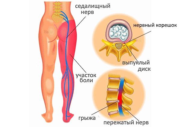 Все типы сильных болей в пояснице связаны с компрессией нервных окончаний позвоночника