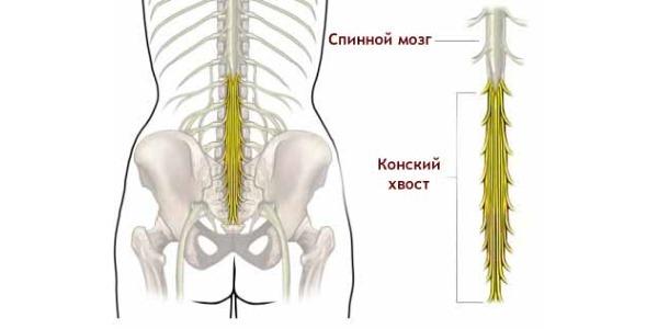 Операция требуется при повреждении нижней части спинного мозга - конского хвоста