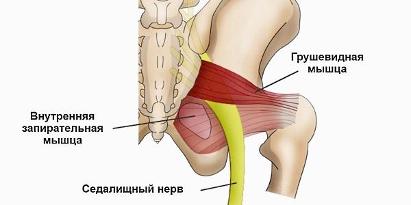 Ишиас может быть спровоцирован спазмом грушевидной мышцы