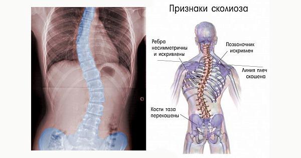 Основой признаков сколиоза является несимметричность тела