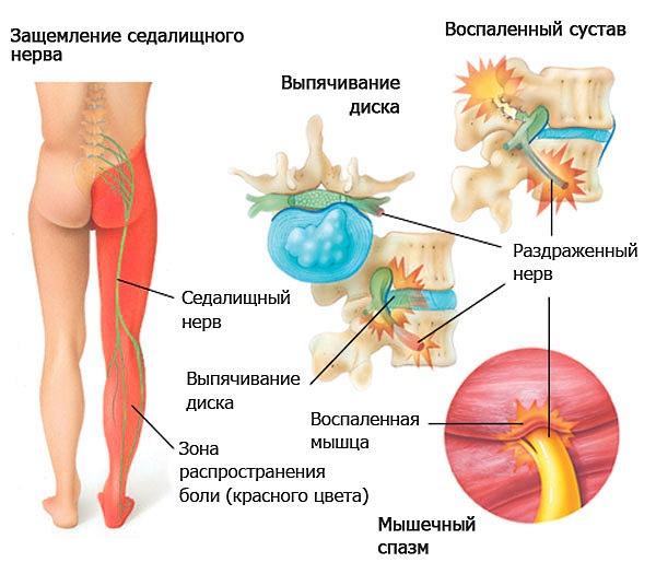 При защемлении седалищного нерва боль распространяется на всю ногу