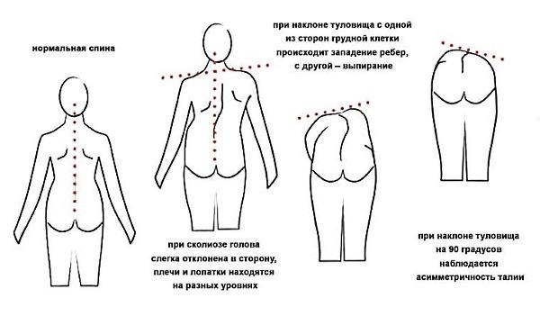 При сколиозе 2 степени анатомия спины становится несимметричной