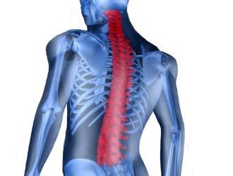 Как правило при кифозе возникают боли в спине