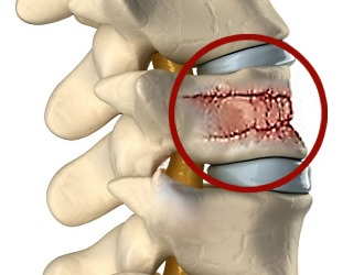 Причинами болей в спине могут быть различные заболевания позвоночника и межпозвоночных дисков