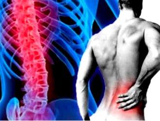 Радикулит фото позвоночника суставов и всего организма коксартроз тазобедренного сустава ле