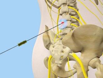 При болях в спине применяются различные блокады