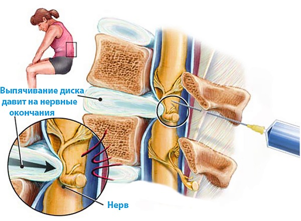 При сильных болях в спине в пораженную область вводят блокаду