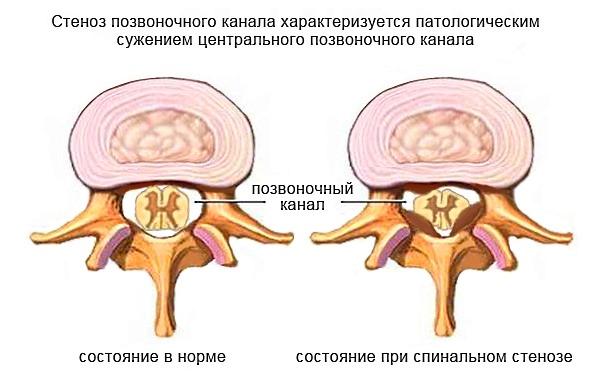 Радикулит возникает при сдавливании спинного мозга и его корешков, как при стенозе позвоночного канала