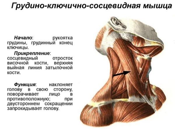 Одна из причин кривошеи - аномальное развитие мышц шеи