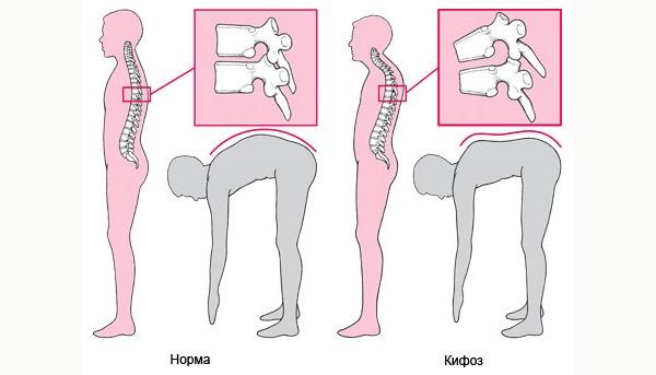 Кифозное иксривление определяется по выпуклости на спине
