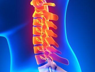 Корешковый синдром шейного отдела