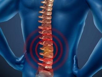 Симптомы хондроза схожи с признаками остеохондроза
