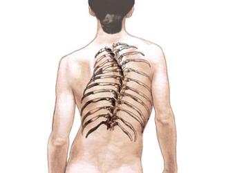 Из-за искривления позвоночника начинают деформироваться ребра, что приводит к неправильной работе внутренних органов