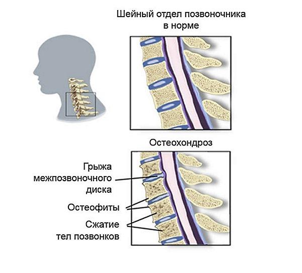 Остеохондроз шейного отдела позвоночника считается самым распространенным видом заболевания
