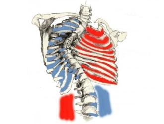 При сколиозе происходит деформация грудной клетки, что ведет к нарушениям в работе внутренних органов