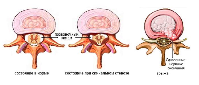 Среди последствий разрастания остеофитов - стеноз канала позвоночника и грыжа