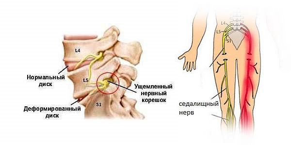 При защемлении нерва помимо чувства жжения могут онеметь конечности
